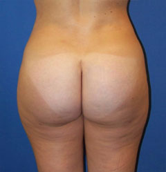 gershenbaum-buttock-post8b.jpg