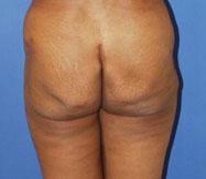 gershenbaum-buttock-pre3.jpg