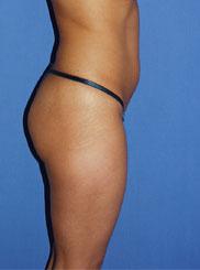 gershenbaum-buttock-pre7a.jpg