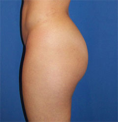 gershenbaum-buttock-pre8a.jpg