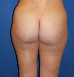 gershenbaum-buttock-pre8b.jpg
