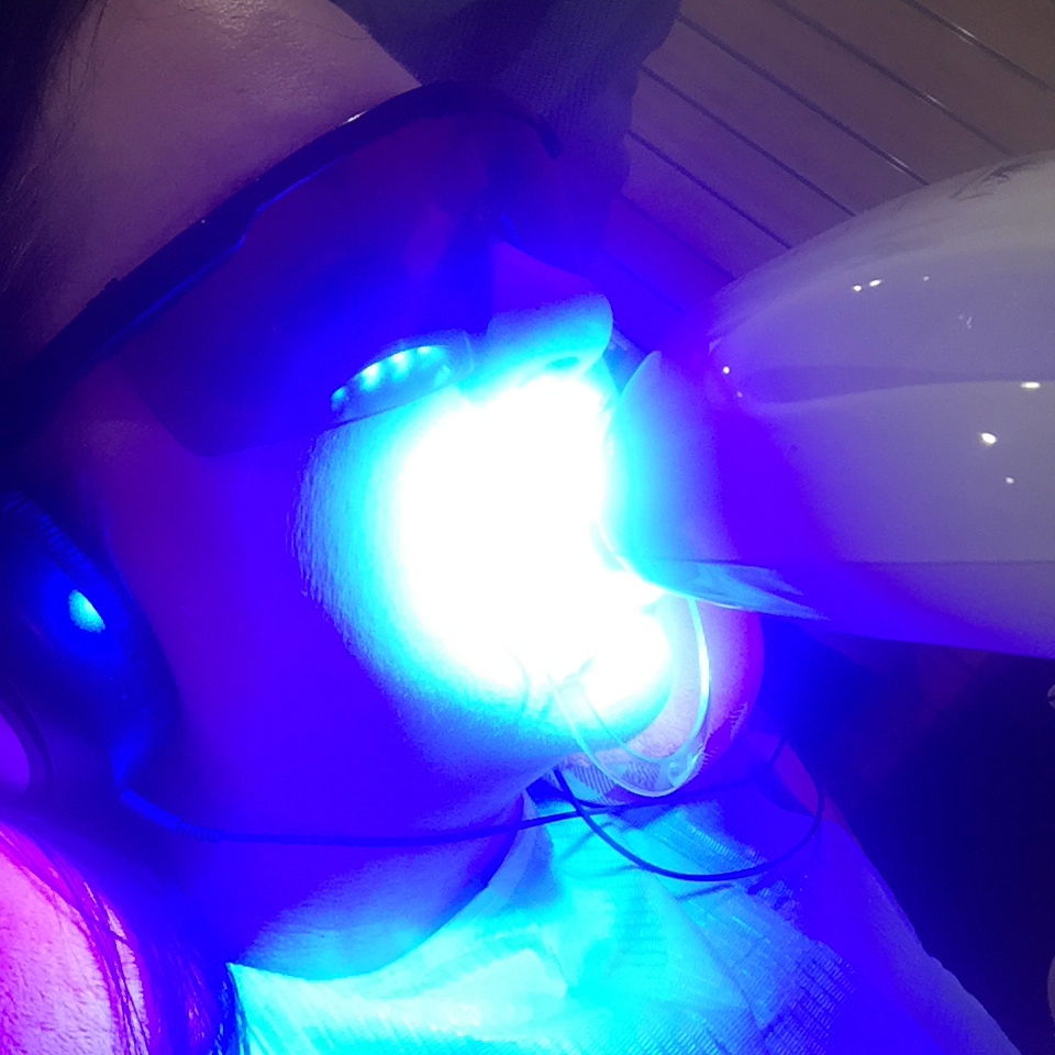 Marisa Robinson Beauty Smile Labs Teeth Whitening