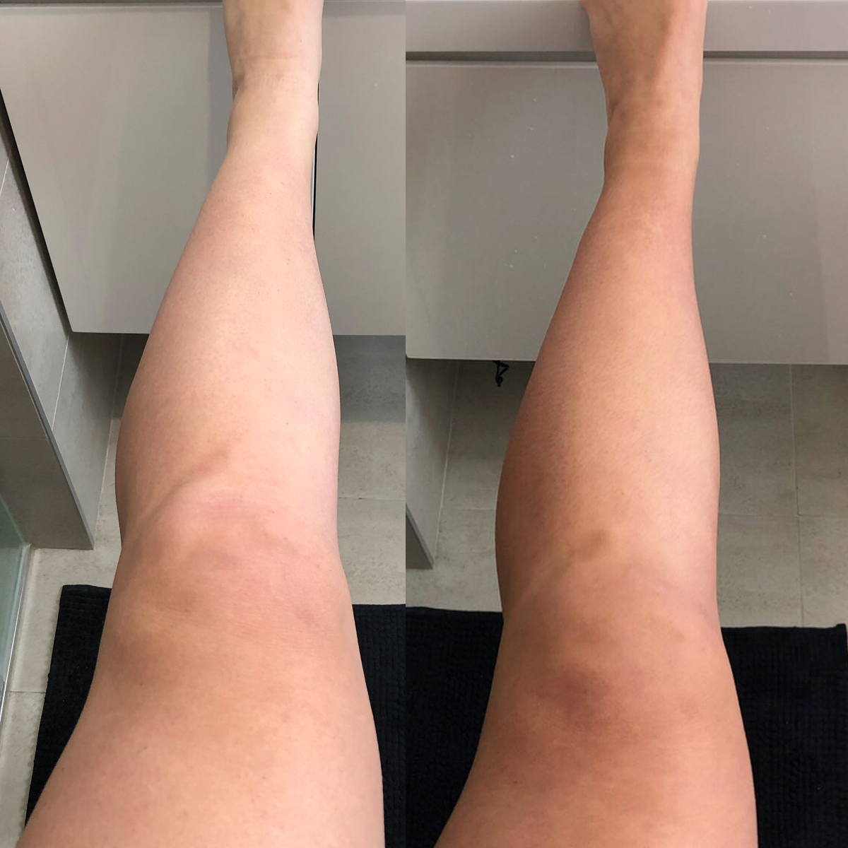 Byron Bay Bronze Tan Review - Before and After Results