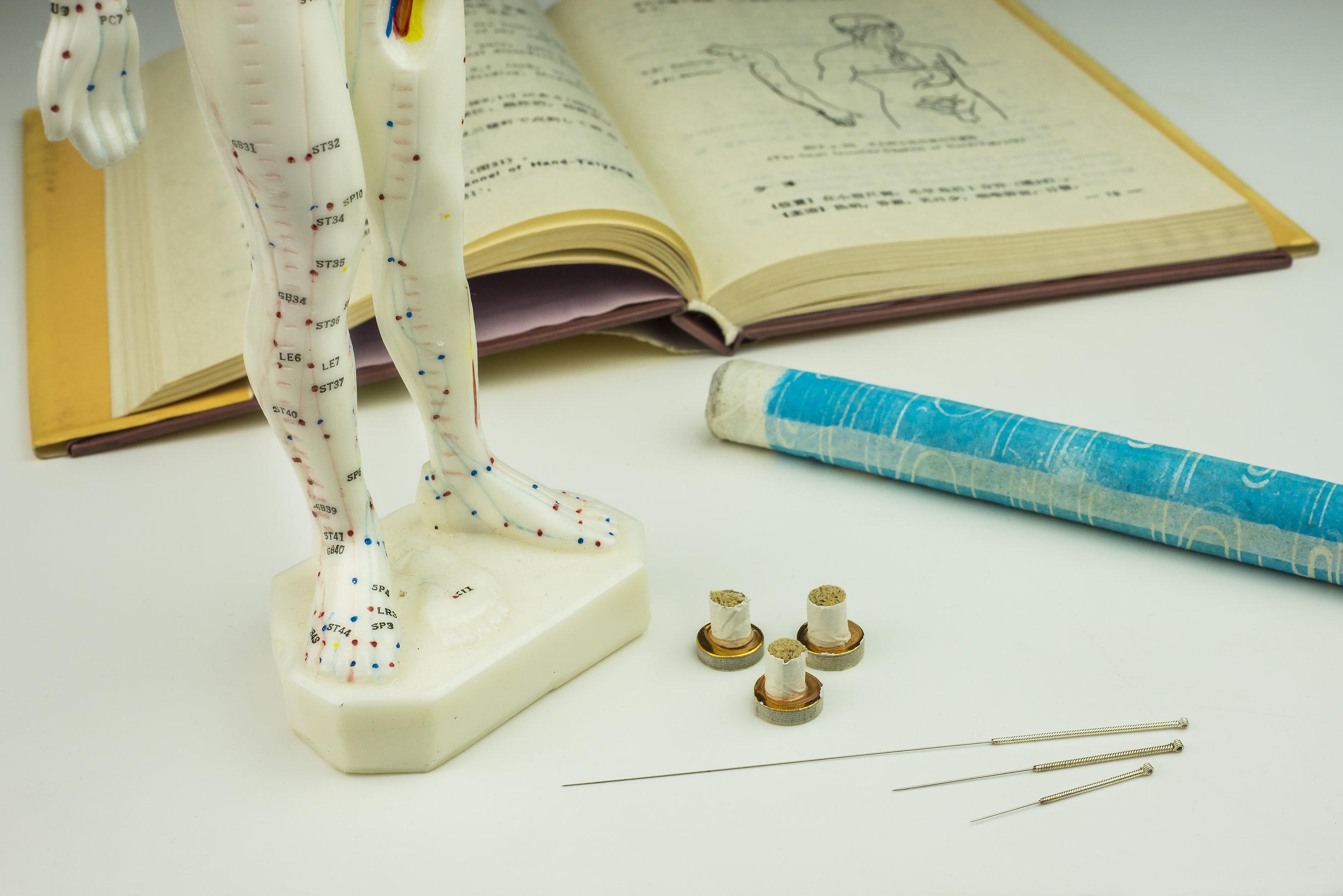 Acupuncture fertility