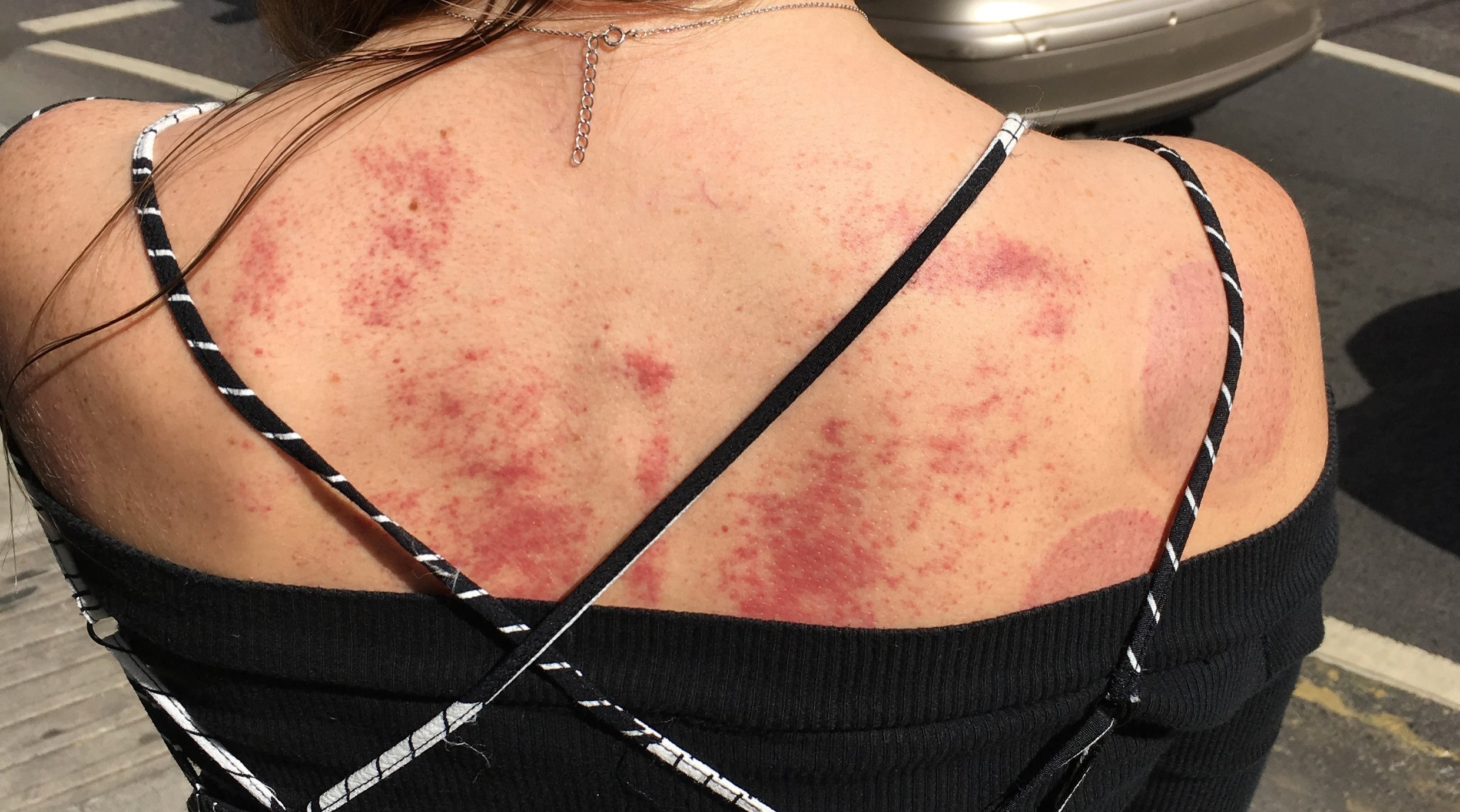Light marks remain on the skin after a session of Gua Sha or Cupping. These will generally disappear within 3 to 5 days.