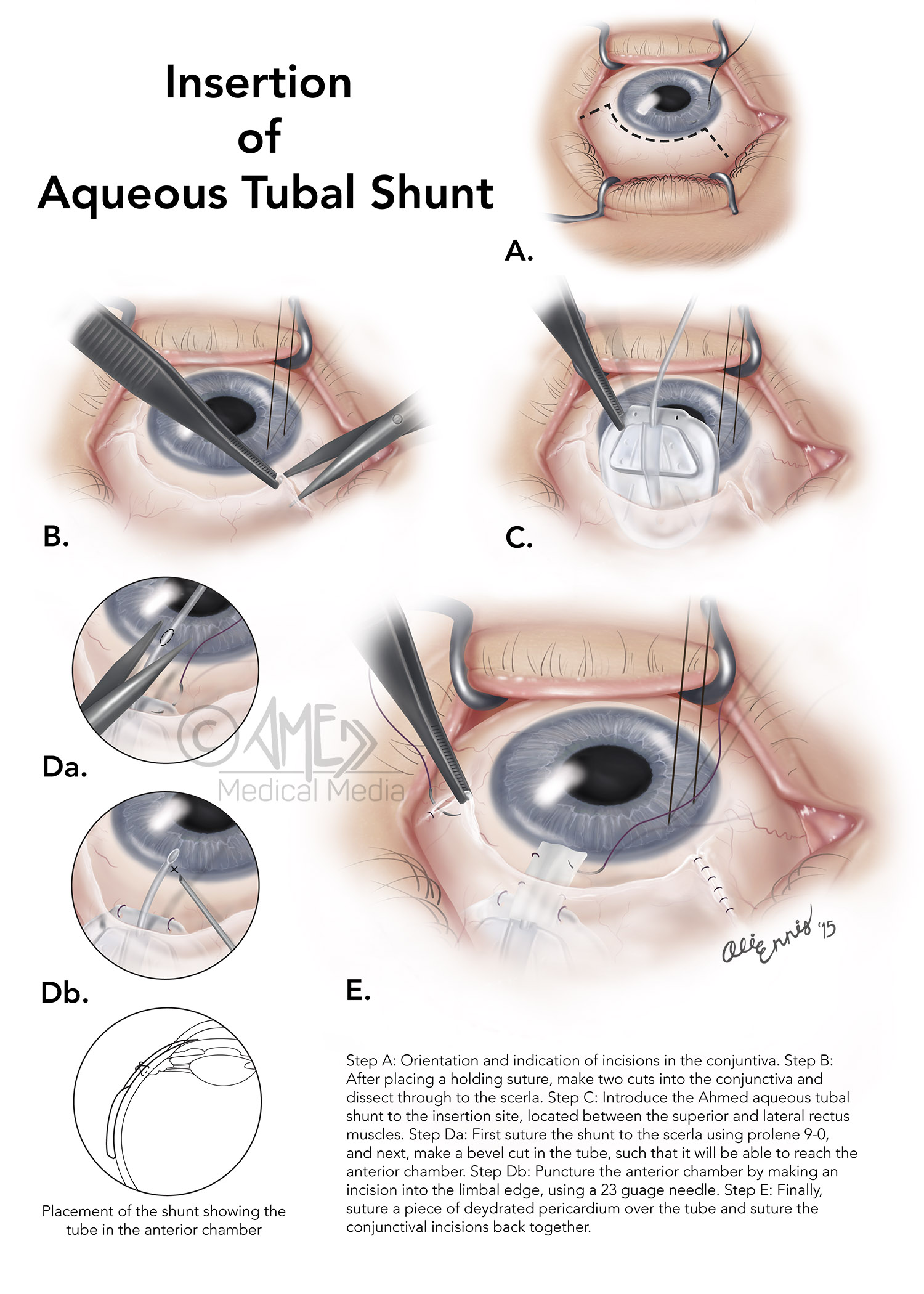 Insertion of Aqueous Tubal Shunt