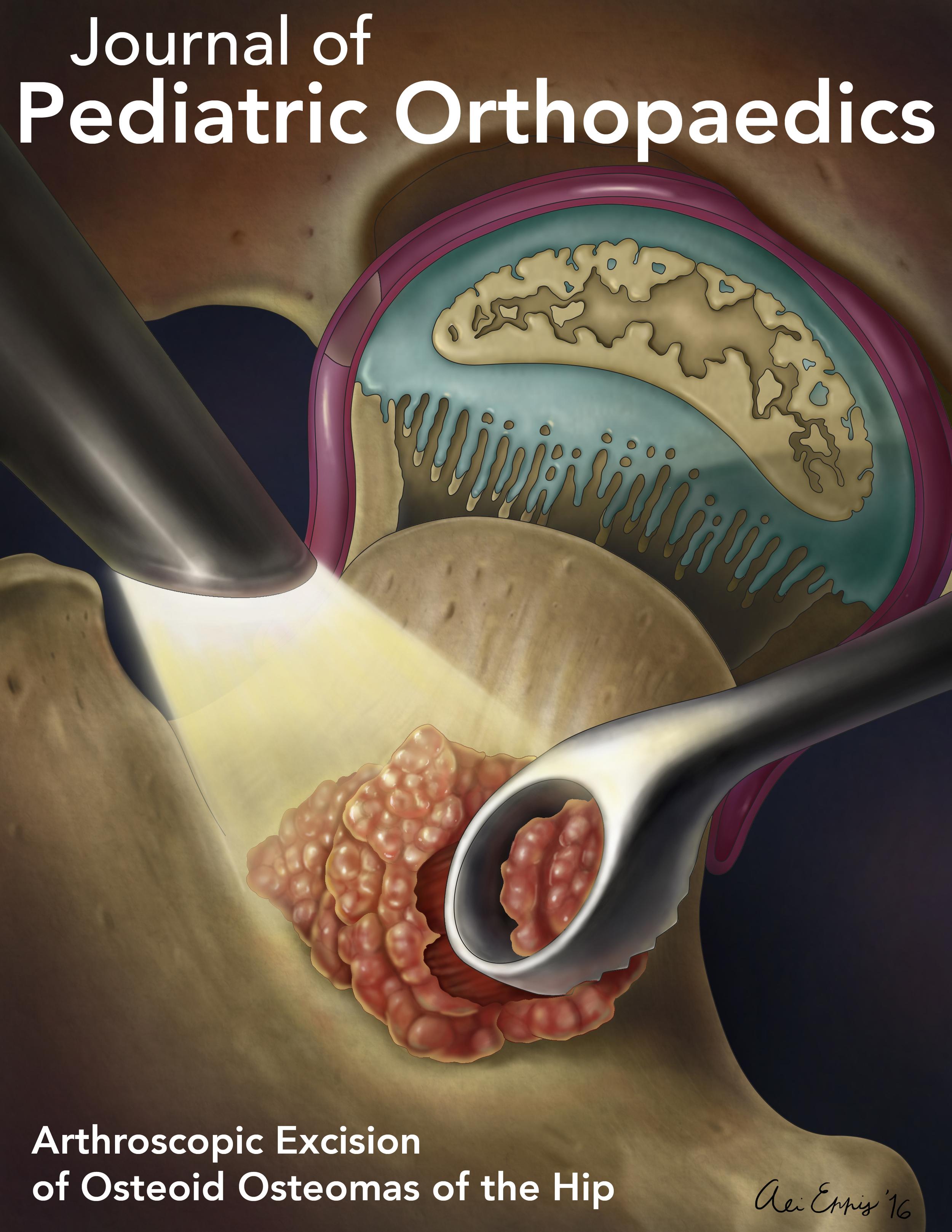 Arthroscopic Excision of Osteoid Osteomas