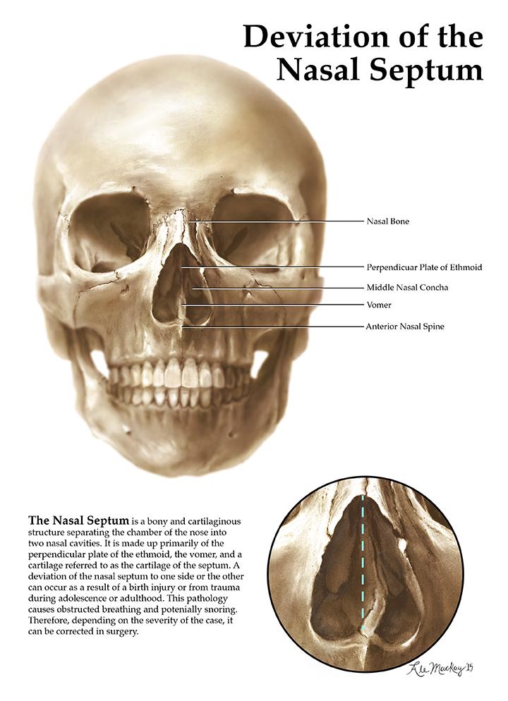 Deviation of the Nasal Septum