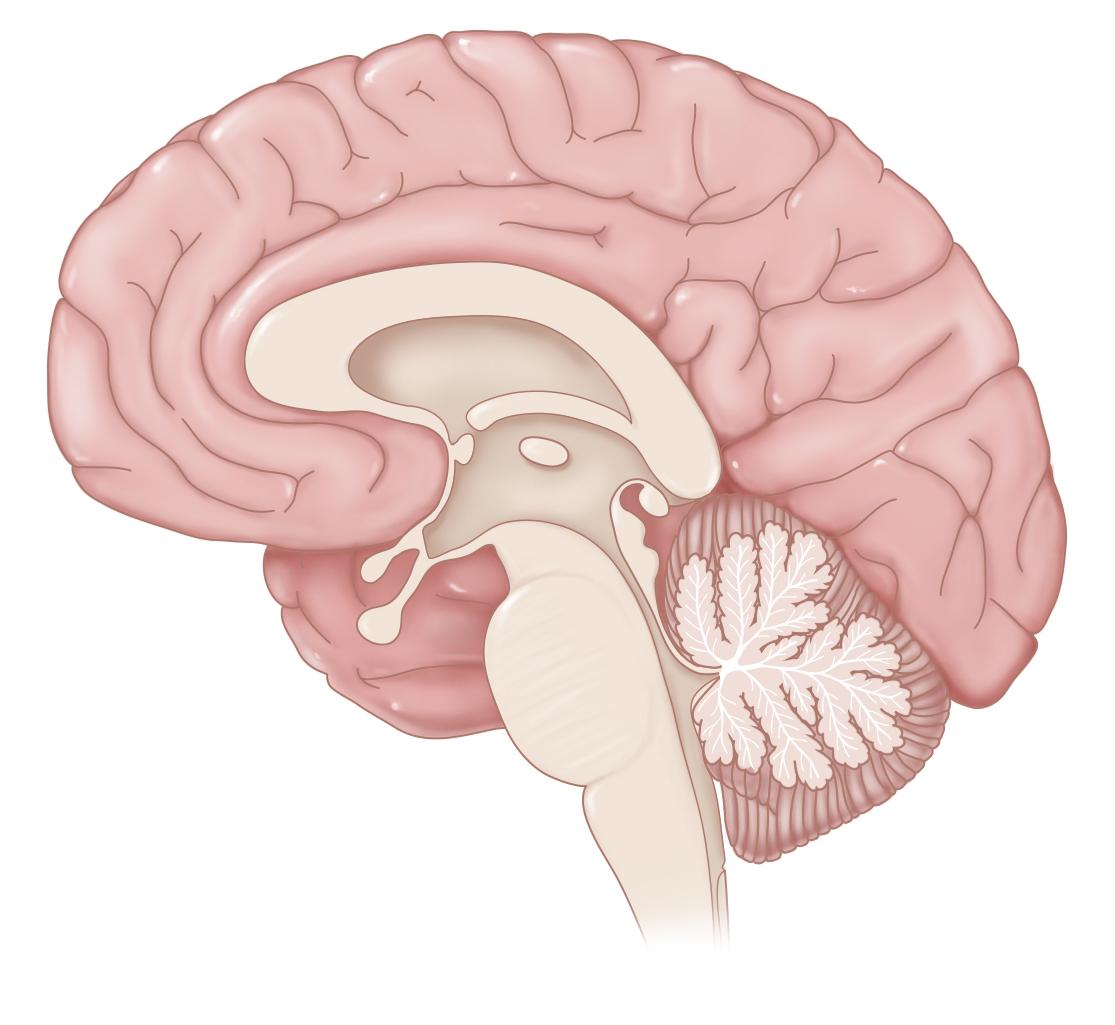 Brain Hemisection
