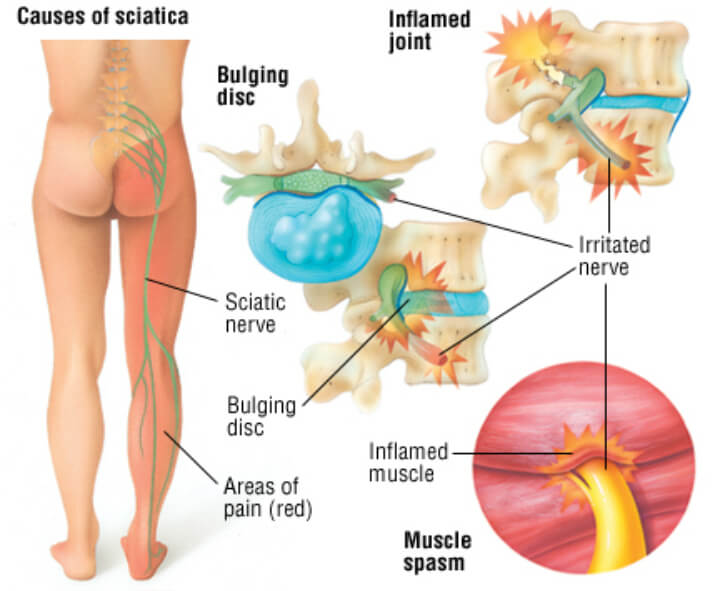 Causes of Sciatica.jpg