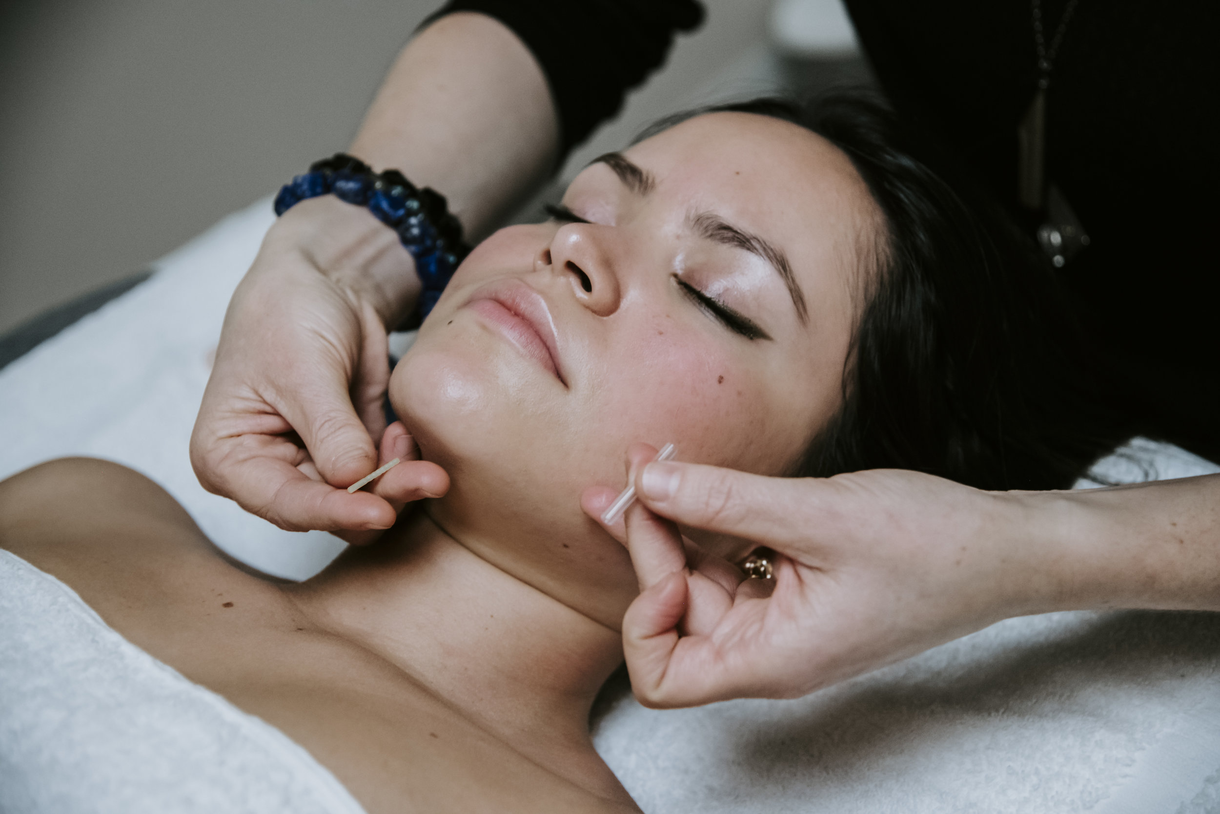 AcuGlow® Facial | 225 - Cleanse | Hydration | Facial/Body Acupuncture | Facial Gua Sha or Facial Cupping | LED | Facial Massage 60 minsThis personalized treatment aims to harmonize imbalance in the body that leads to skin ailments such as acne, rosacea, muscle weakness, puffiness, and wrinkles. After a tailored skin assessment, this treatment begins with a deep cleanse, using the organic Beauty Shamans skincare line, also incorporating targeted facial and neck massage. Facial acupuncture points are stimulated to encourage the production of collagen and circulation, while also helping to lift and define points like the cheeks, jawline, and eyebrows. LED light therapy is used to target acne, wrinkles, and inflammation.