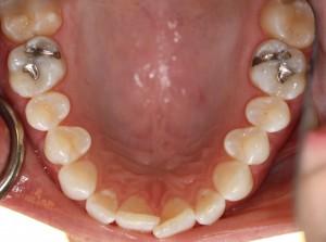 Barry Dental Center Invisalign
