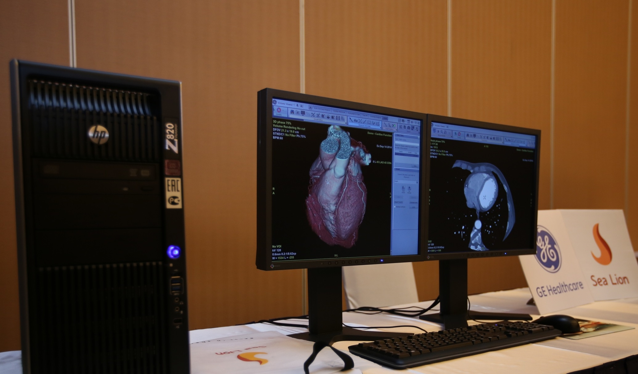 GE Healthcare's Multi-Modal Advanced Workstation