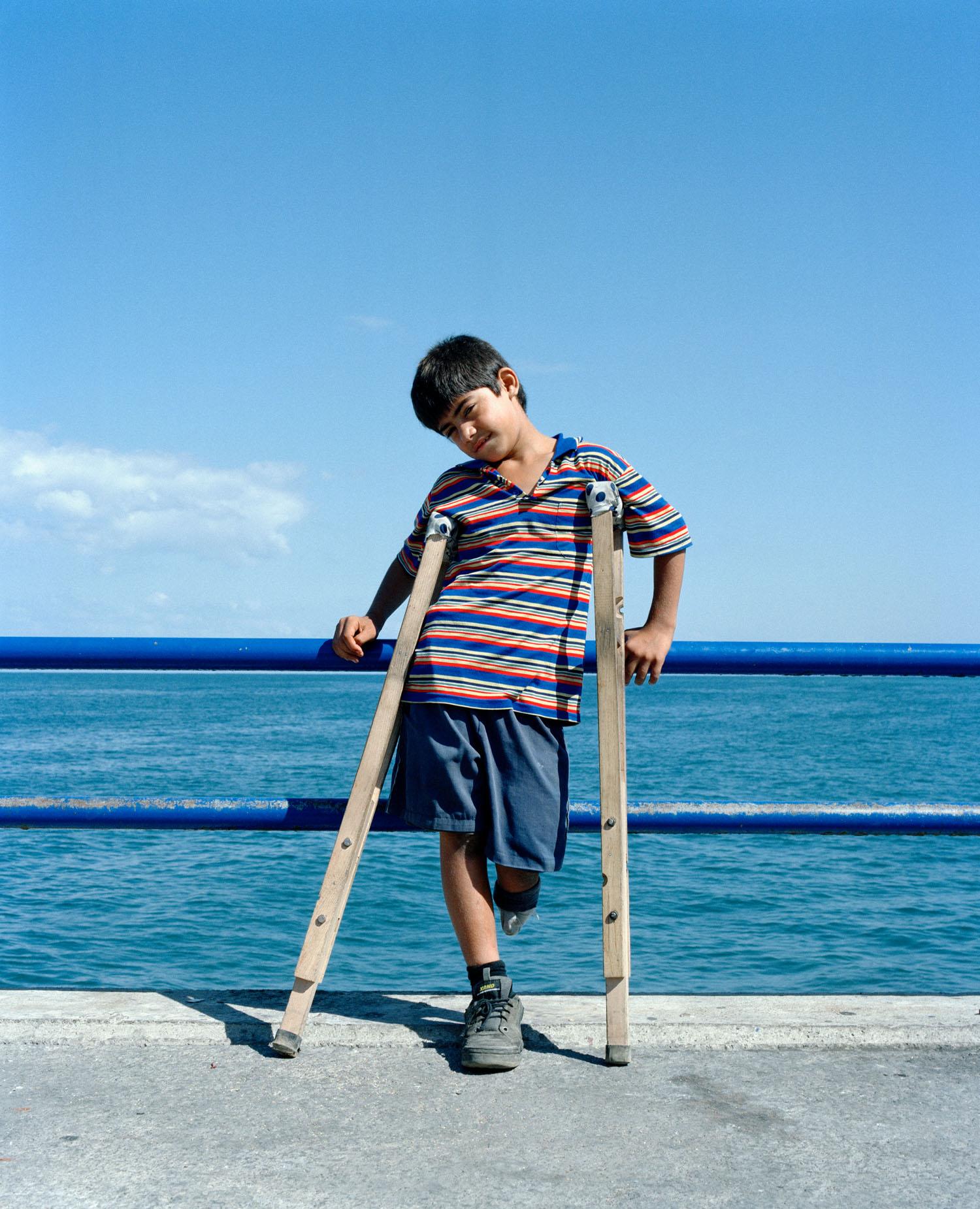 Beirut-jongetje-been.jpg