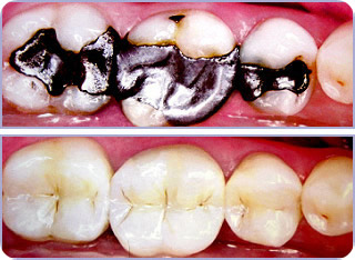 White fillings by Worthing dentists as dental treatments a type of cosmetic treatments.