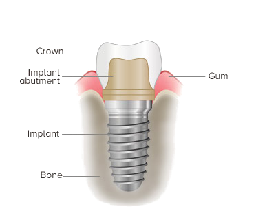 Dental Implant at Provident dental clinic in Worthing, West Sussex