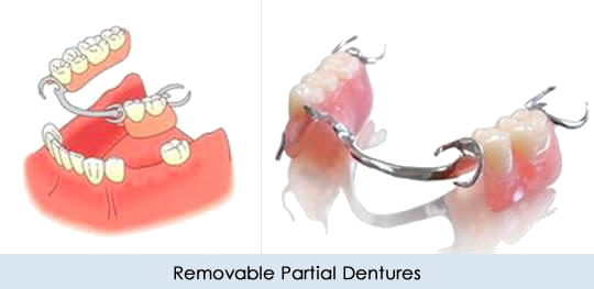 Partial dentures, False teeth. Made by Worthing Dentist. Fast and reliable service.