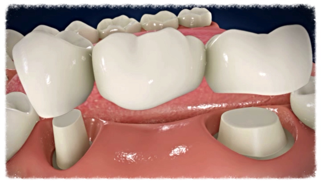 Dental Bridge done at Worthing Dental Practice. White Bridges in Dentistry