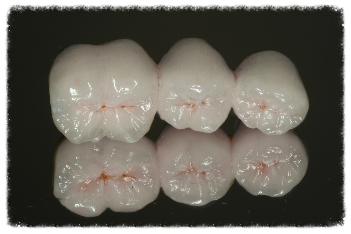 White cosmetic bridge at Provident Dental Surgery in Worthing town centre.