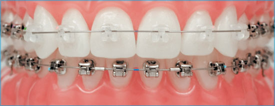 Damon metal and clear brackets.
