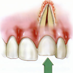 tooth injury puched back in socket.jpg