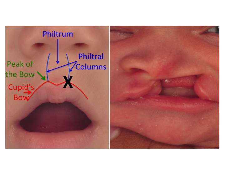During formation of the lip, if one of the side portions of the lip does not reach and connect with the center part of the lip, a unilateral cleft of the lip occurs. The  X  in the image on the left shows where the lip failed to merge resulting in the unilateral cleft lip. The image on the right is of an infant with a complete left unilateral cleft lip and palate.