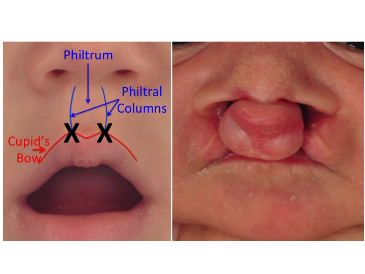 In bilateral cleft lip, both the left and right philtral columns and the peaks of the Cupid's bow are absent. The  X  in the image on the left shows where the lip failed to merge resulting in the bilateral cleft lip. The image on the right is of an infant with a complete bilateral cleft lip and palate.