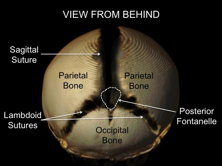 cranial sutures posterior view