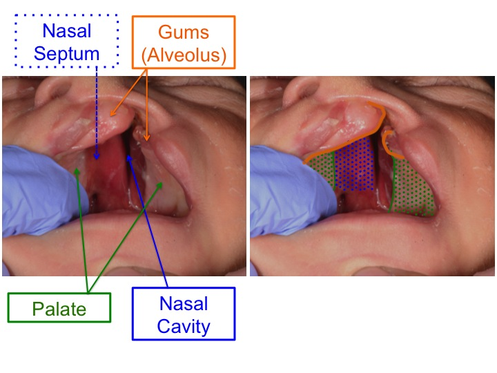 These images show a patient with a left cleft lip and palate. In cleft lip and palate the cleft involves the upper gums between the lip and the palate (outlined in ORANGE above). Cleft palate results in an abnormal opening between the oral cavity (mouth) and nasal cavity (nose). The lining of the palate has a dull pink appearance (shaded in GREEN above). The lining of the inside part of the nose (nasal cavity) including the nasal septum has a bright red appearance (shaded BLUE above).
