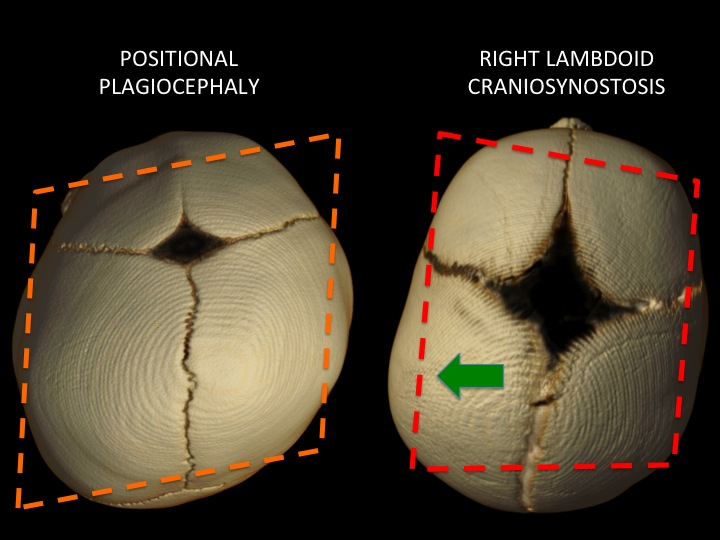 In positional plagiocephaly (LEFT) there is shifting of the skull base, but no restriction of growth on one side versus the other. In lambdoid craniosynostosis (RIGHT) there is constriction of the growth on the right and increased (compensatory growth) on the left - indicated by the GREEN ARROW.