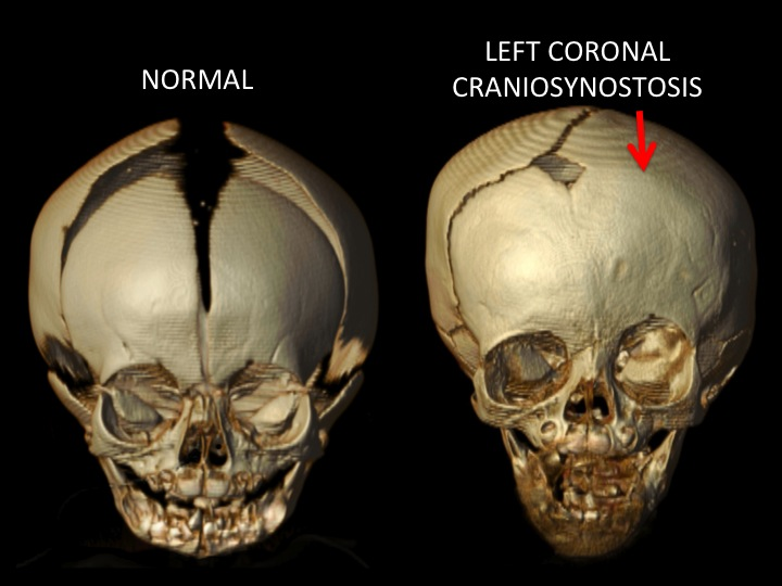 The image above shows the front view of a normal skull and a left coronal craniosynostosis with the red arrow pointing to the closed coronal suture on the left side of the skull. Note that the forehead is flattened and the upper portion of the eye socket (orbit) is raised and pushed back on the side of the closed suture.