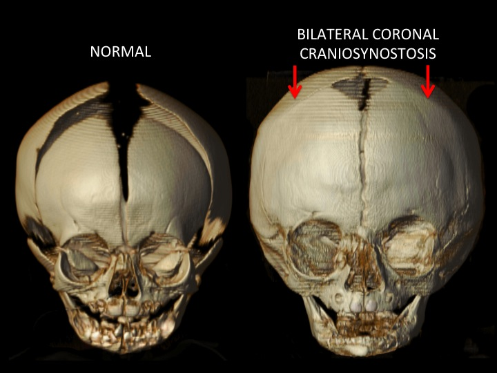 The red arrows indicate the location of the closed coronal sutures. Note the increased height and width of the skull from compensatory growth in the remaining open sutures. The upper portion of the eye socket (orbit) is raised and pushed back. The forehead is very flat, tall and wide.