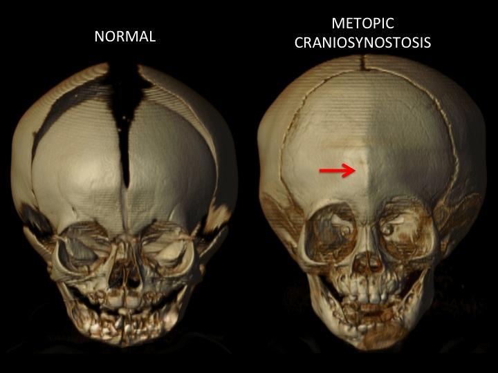 This figure shows the position of the closed metopic suture indicated by the red arrow. Note the narrow forehead, the midline vertical ridge in the position of the closed metopic suture and decreased space between the eye sockets.