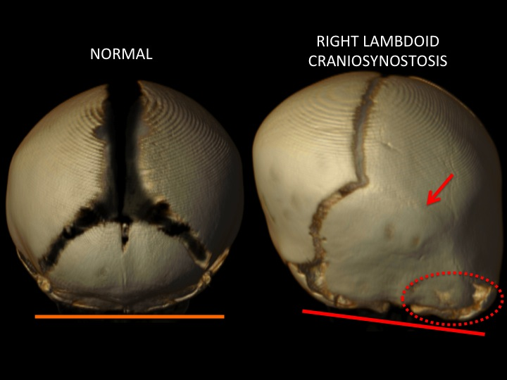 The above image compares a view of the back of the skull of a normal skull and one with right lambdoid synostosis with the red arrow showing the location of the closed suture. The tilt of the red line on the right image shows the change in the cranial base angle and the dotted circle highlights the downward mastoid bulge.