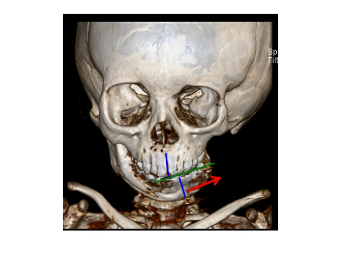 This frontal view shows the same patient from the images above. Note the many affects that the decreased size of the jaw on the left side causes. The blue line indicated the space between the front teeth of the upper and lower jaws. The small left jaw causes the dental midline and hte chin to swing over to the left. The decreased vertical height of the left lower jaw also causes the upper jaw to be abnormally short. This results in an upward tilt of the bite.