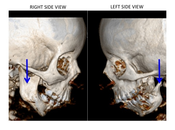 The blue arrows point to the ramus (vertical portion) of the lower jaw (mandible). The patient's left ramus is almost completely absent.