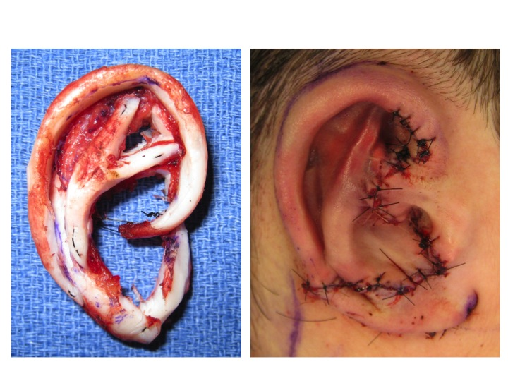 Above the assembled, carved rib cartilage construct is shown before and after placement of a skin flap. In this technique the construct initially lies flat against the side of the head. A second procedure is required to elevated the ear and place a skin graft. Often times a third touch up procedure is required.