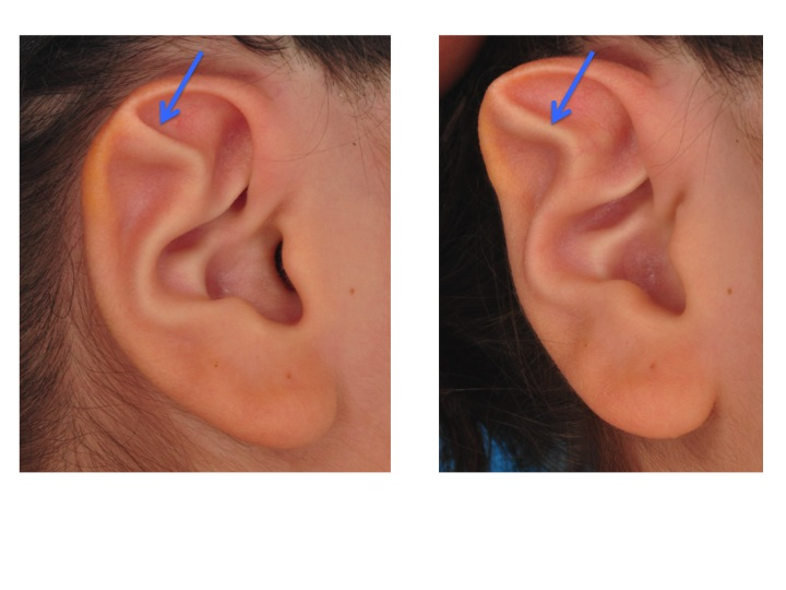 Note how the extra crease (BLUE ARROWS) rolls out the outer rim of the ear giving the ear a pointy appearance.