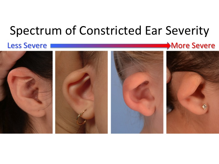 Constricted Ear Spectrum 1