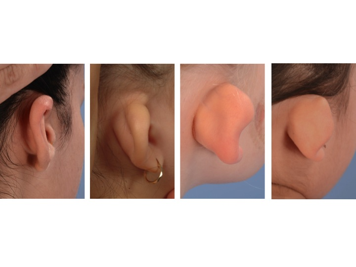 Constricted Ear Spectrum 2