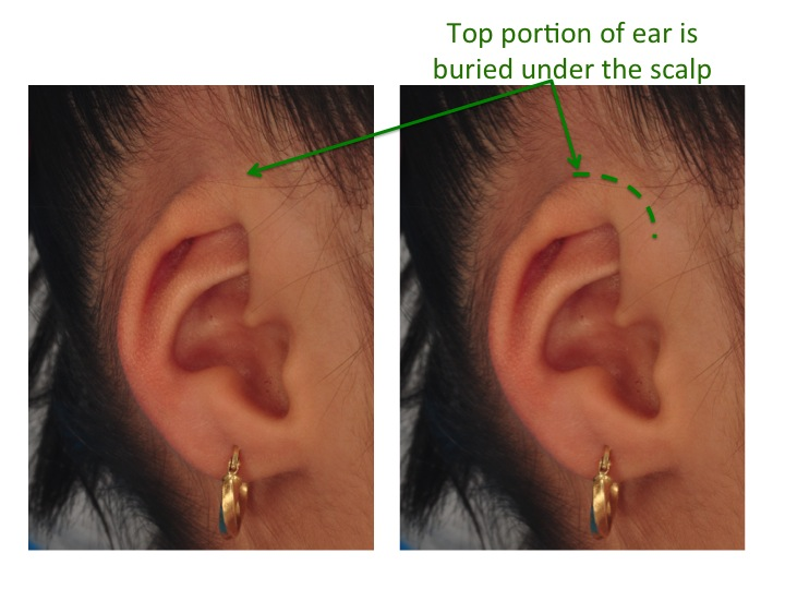 In cryptotia the space where glasses would normally rest is not present because the inner portion of the ear is buried under the scalp. The buried part of the ear is shown with the green dotted line.