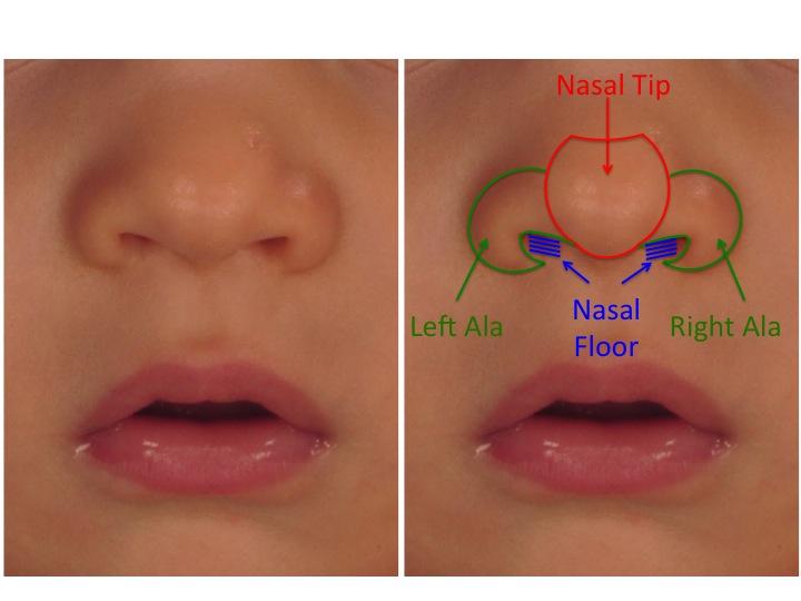 Cleft Nasal Anatomy Figure 1