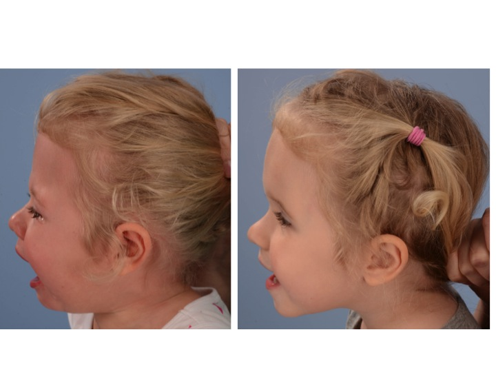 The pictures above show the patient's appearance 2 years after her PVDO on the left, just before her FOA. The images on the right are 6 months after the reshaping of her forehead and upper eye sockets (orbits) with fronto-orbital advancement (FOA) performed at age 3 years old. Note the improved contour of the forehead from broad and flat to more rounded. The upper portion of the eye sockets have been moved forward and downward. They now site in front of the eyes in a more normal position.