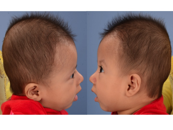 The images above show the left and right side views of the same infant with left coronal craniosynostosis. Note that the forehead is flattened on the left and pushed forward on the right. The upper portion of the left eye socket sits behind the cornea. The right side sits farther in front of the cornea because of the compensatory overgrowth on the right side of the skull.
