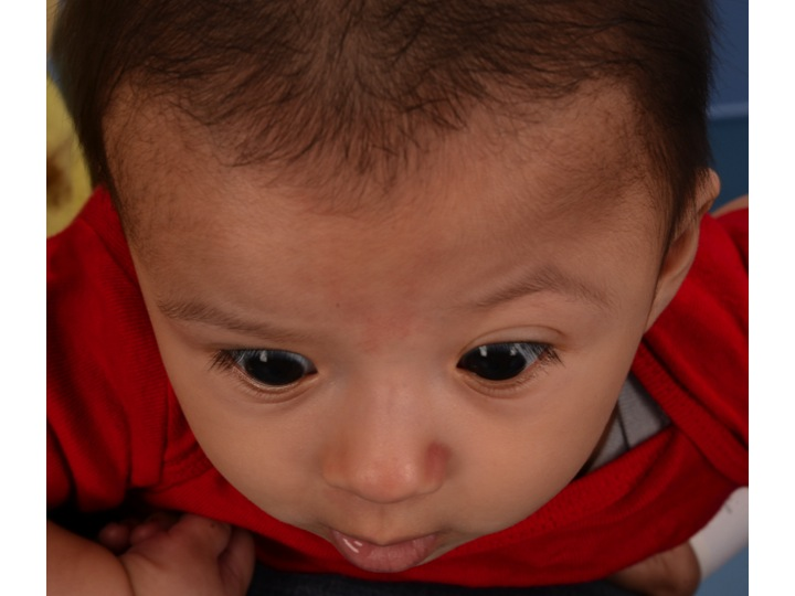 This baby has left coronal synostosis. Note the flattening of the left forehead and upper portion of the eye socket (orbit). He underwent FOA at 10 months of age.