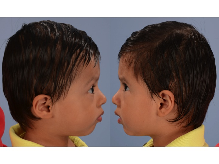 These are side views of the patient above 14 months after FOA. Note the symmetric shape and position of the forehead and upper eye socket.