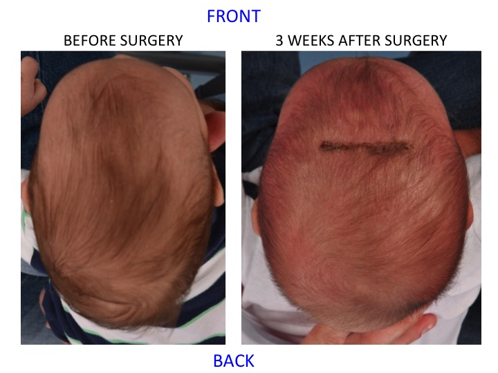 Minimally Invasive Endoscopic Sagittal Strip Craniectomy Top Down