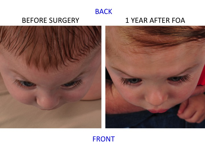 This figure shows a patient's forehead shape before and after frontoorbital advancement (FOA) as seen when looking down on the top of the head. Note the widening of the forehead and normal appearance in the shape and position of the upper portion of the eye sockets (orbits).