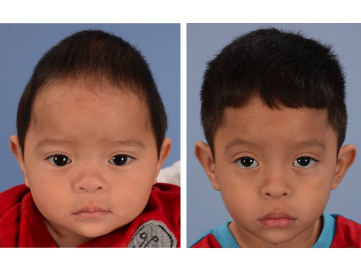 The picture on the left shows a boy with significant narrowing of the back portion of the skull and significant compensatory growth of the forehead. The image on the right shows the same patient 2 years after surgery.
