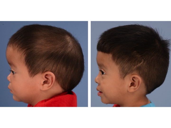 The picture on the left shows the same infant with sagittal synostosis demonstrating significant compensatory growth of the forehead. The image on the right shows the same patient 2 years after surgery.